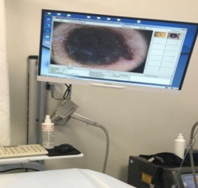 Individuare tumore della pelle